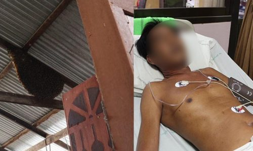 Thai Man Fighting For His Life After Looking For Lottery Numbers In Bees Nest
